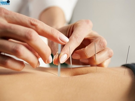 Left or right acupuntura2