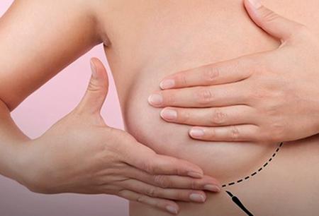 Left or right autoexame cancer de mama