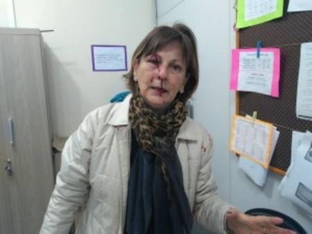 Left or right professora agredida